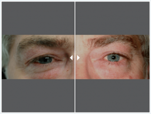 Dr Shahidi blepharoplasty before and after