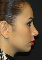Rhinoplasty Computer Imaging Post surgery