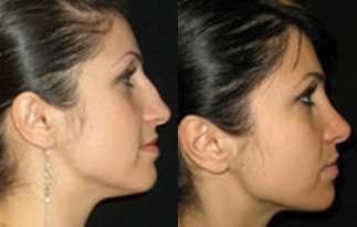 Rhinoplasty Faqs Why Is My Nose Oily After Rhinoplasty