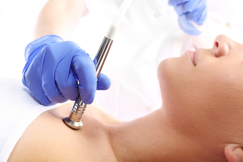 Microdermabrasion_treatment_body