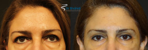 Blepharoplasty Before and After Gallery