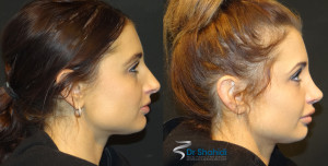 Female Rhinoplasty Before and After Gallery