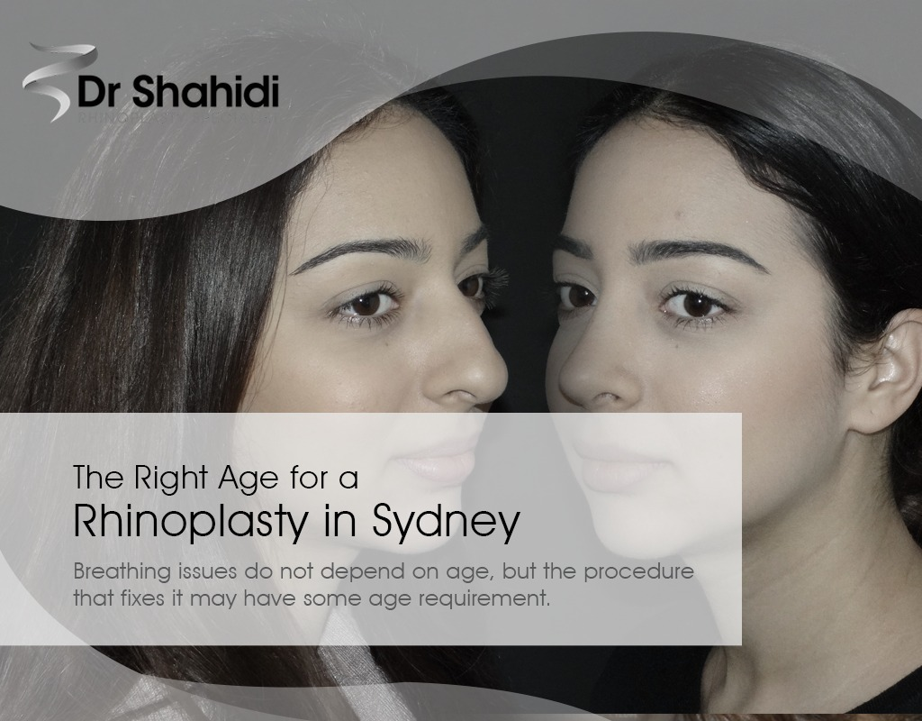 Dr Shahidi - The Right Age for a Rhinoplasty in Sydney